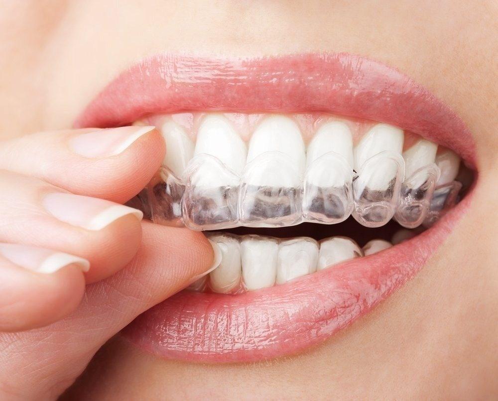 Clareamento Dental Com Moldeira Precos Como Fazer Sensibilidade