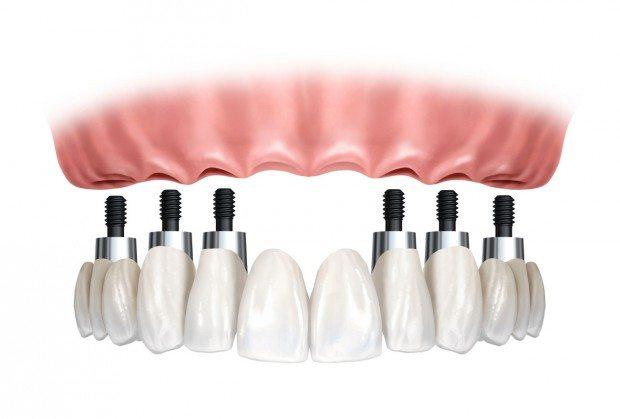 protese-fixa-sobre-implantes-620x419
