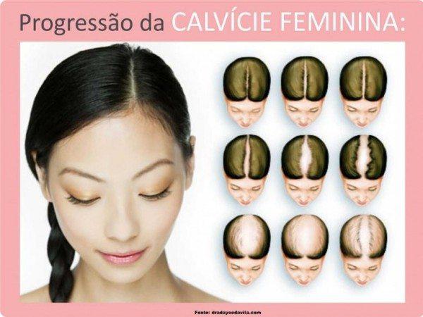 alopecia feminina tratamento caseiro
