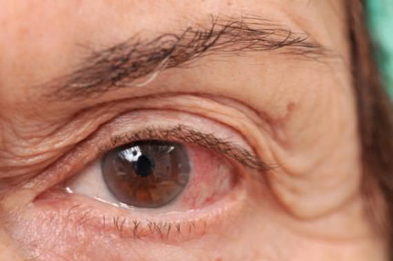 entenda-as-diferencas-entre-o-glaucoma-cronico-e-o-agudo-4-664-thumb-570