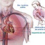 Isquemia do Miocardio